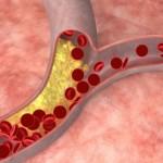 যে ৬ টি কারণে আপনার হতে পারে উচ্চ কোলেস্টেরলের মারাত্মক সমস্যা